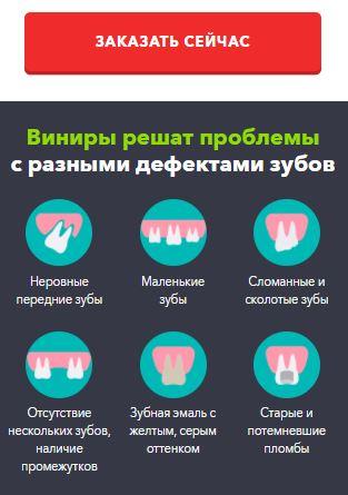 купить виниры для зубов в казани