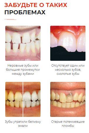 Как заказать алиэкспресс зубные виниры